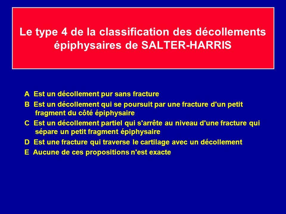 Le type 4 de la classification des décollements épiphysaires de SALTER-HARRIS A Est un décollement pur sans fracture B Est un décollement qui se pours