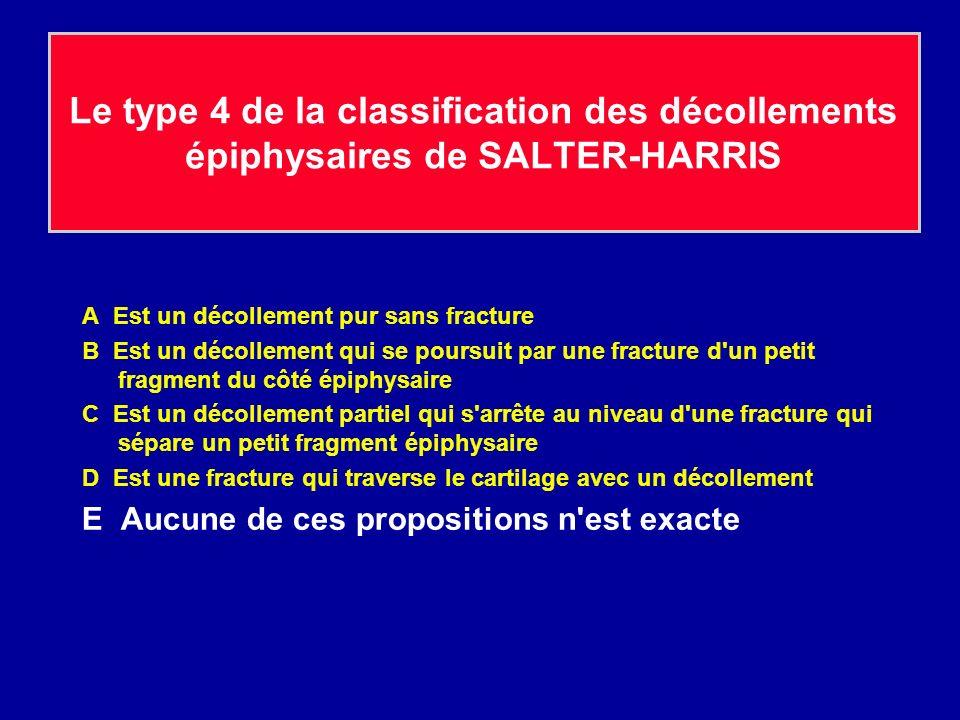 Le type 4 de la classification des décollements épiphysaires de SALTER-HARRIS A Est un décollement pur sans fracture B Est un décollement qui se poursuit par une fracture d un petit fragment du côté épiphysaire C Est un décollement partiel qui s arrête au niveau d une fracture qui sépare un petit fragment épiphysaire D Est une fracture qui traverse le cartilage avec un décollement E Aucune de ces propositions n est exacte