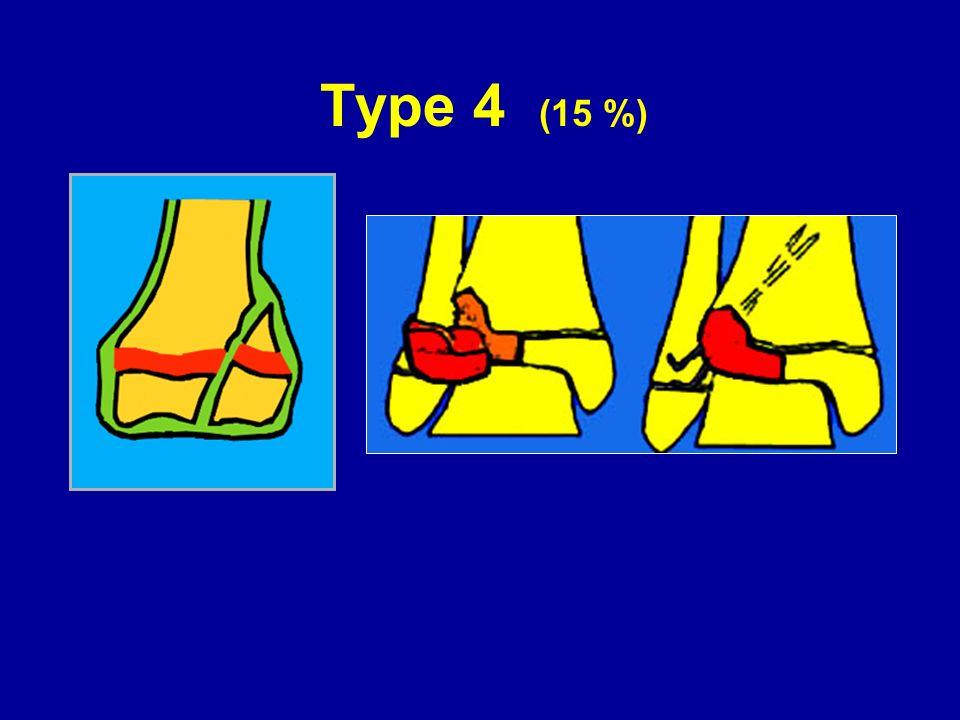 Type 4 (15 %)