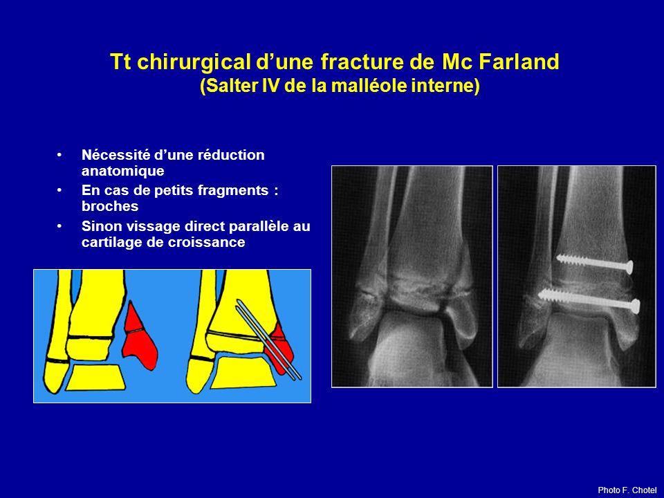 Tt chirurgical dune fracture de Mc Farland (Salter IV de la malléole interne) Nécessité dune réduction anatomique En cas de petits fragments : broches