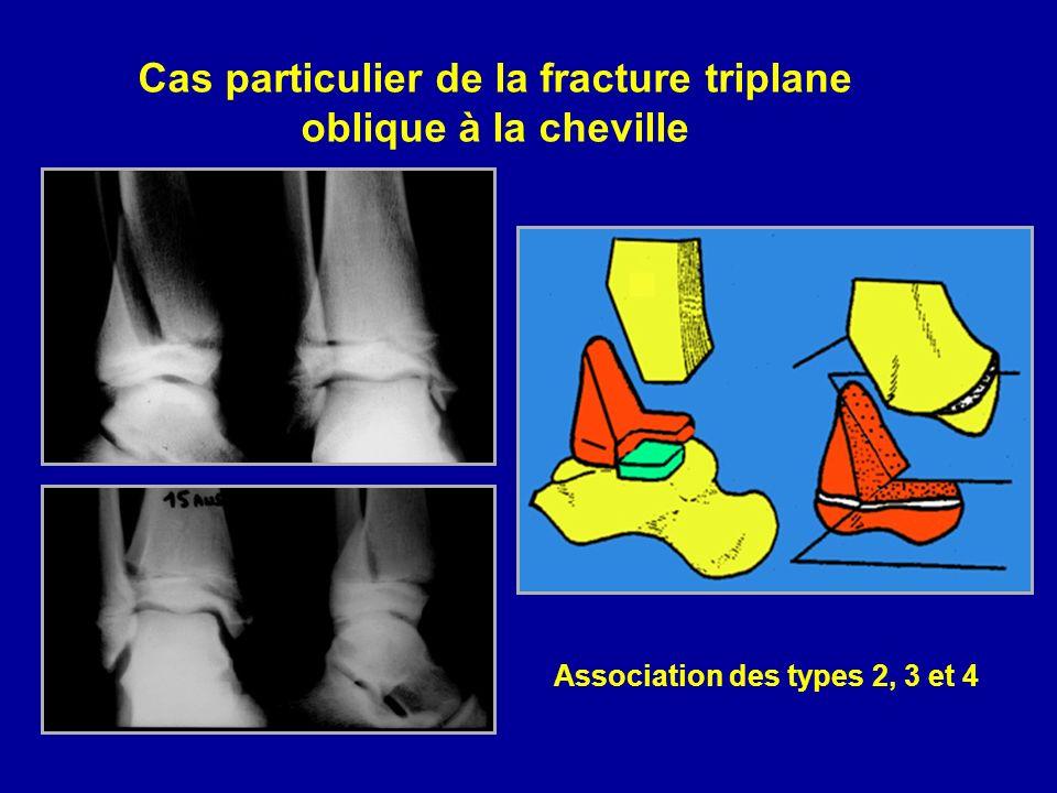Cas particulier de la fracture triplane oblique à la cheville Association des types 2, 3 et 4