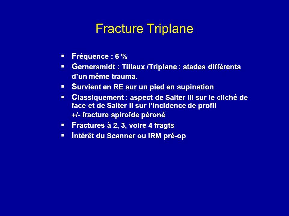 Fracture Triplane F réquence : 6 % G ernersmidt : Tillaux /Triplane : stades différents dun même trauma. S urvient en RE sur un pied en supination C l