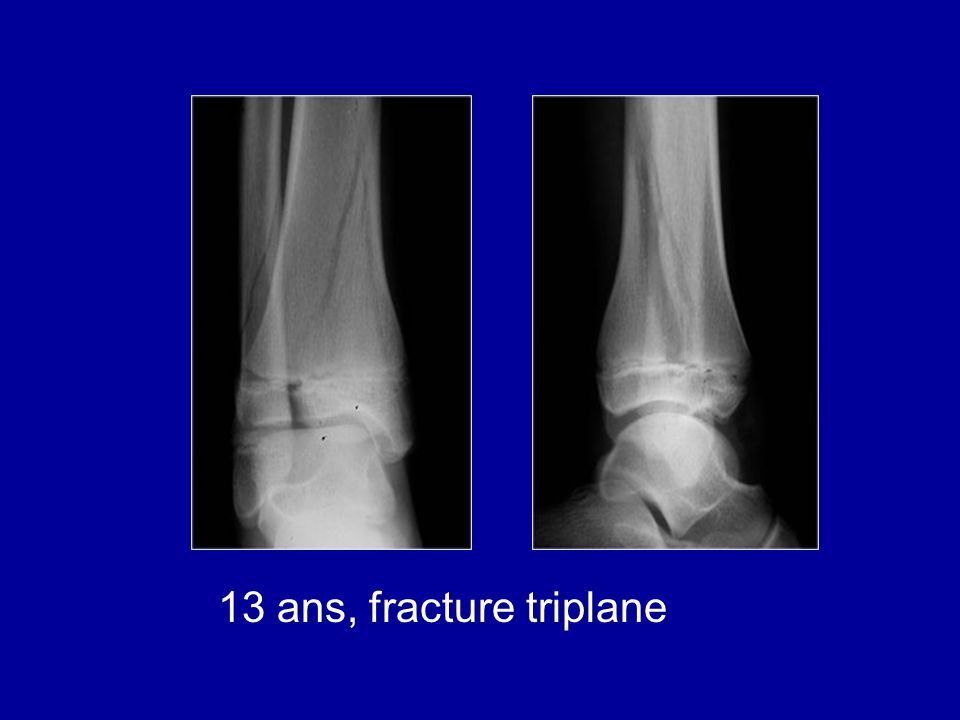 13 ans, fracture triplane