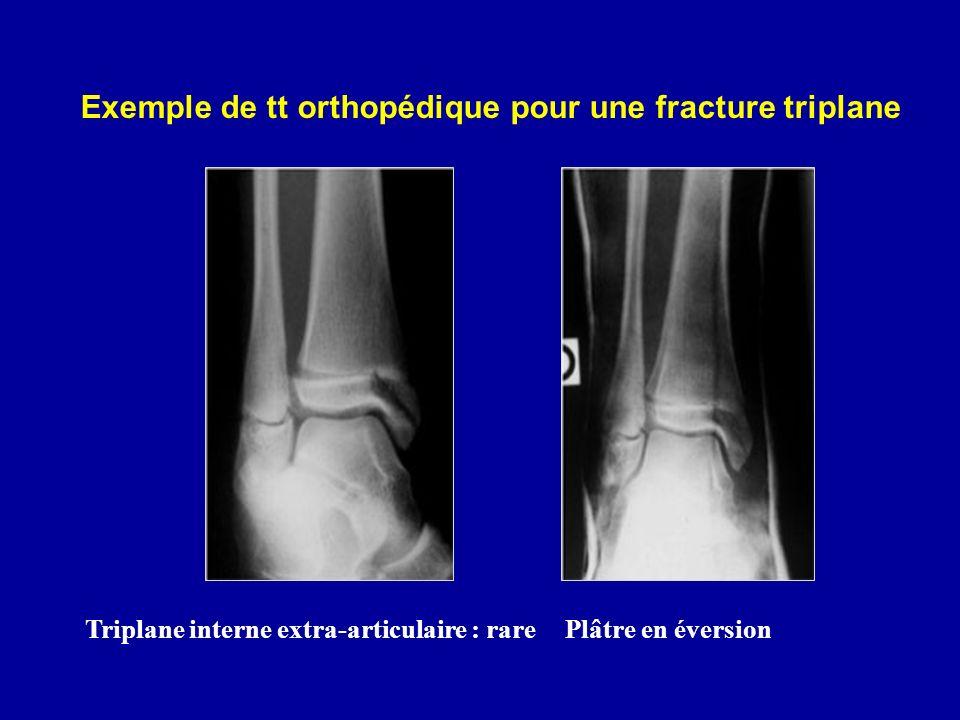 Triplane interne extra-articulaire : rarePlâtre en éversion Exemple de tt orthopédique pour une fracture triplane