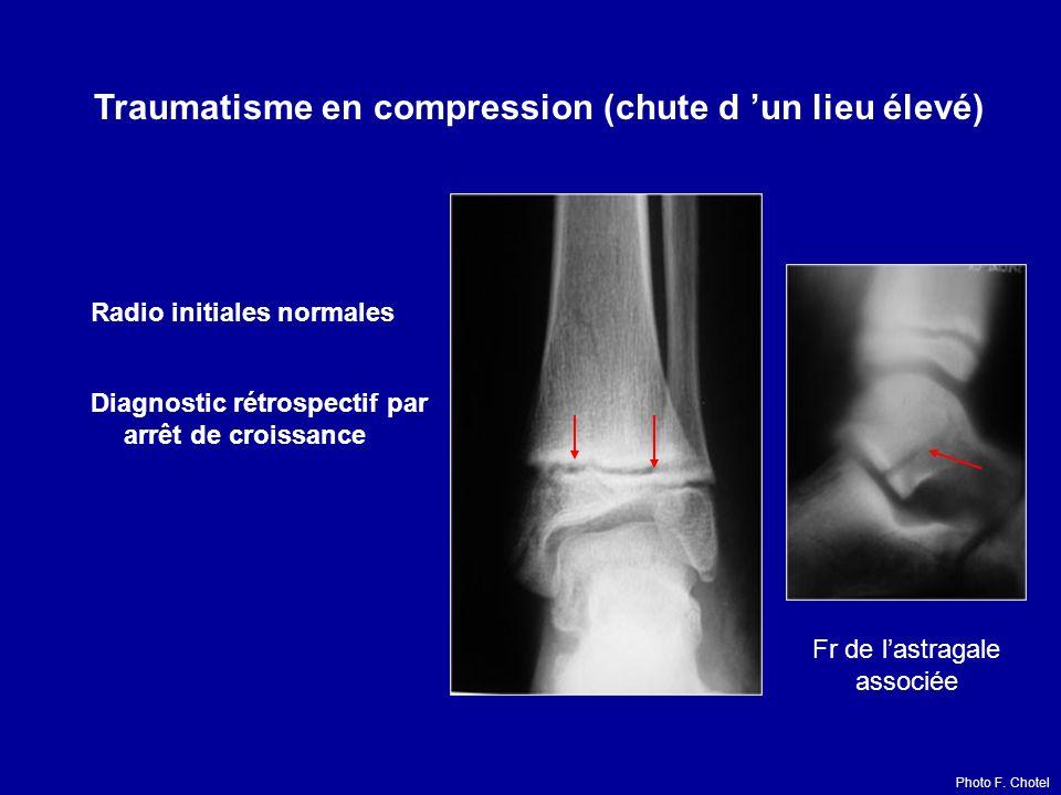Radio initiales normales Diagnostic rétrospectif par arrêt de croissance Fr de lastragale associée Traumatisme en compression (chute d un lieu élevé)