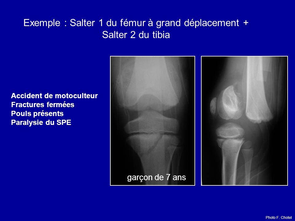 Exemple : Salter 1 du fémur à grand déplacement + Salter 2 du tibia Accident de motoculteur Fractures fermées Pouls présents Paralysie du SPE garçon de 7 ans Photo F.