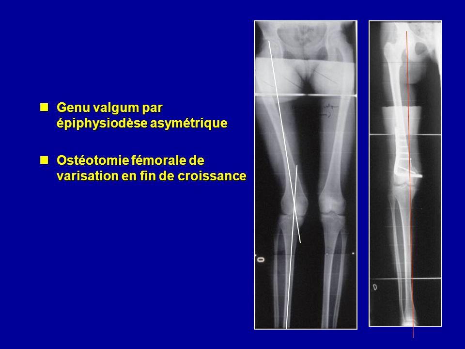 Genu valgum par épiphysiodèse asymétrique Genu valgum par épiphysiodèse asymétrique Ostéotomie fémorale de varisation en fin de croissance Ostéotomie