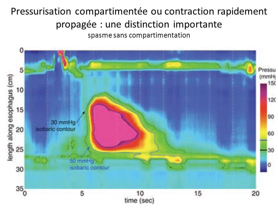 Pressurisation compartimentée ou contraction rapidement propagée : une distinction importante spasme sans compartimentation