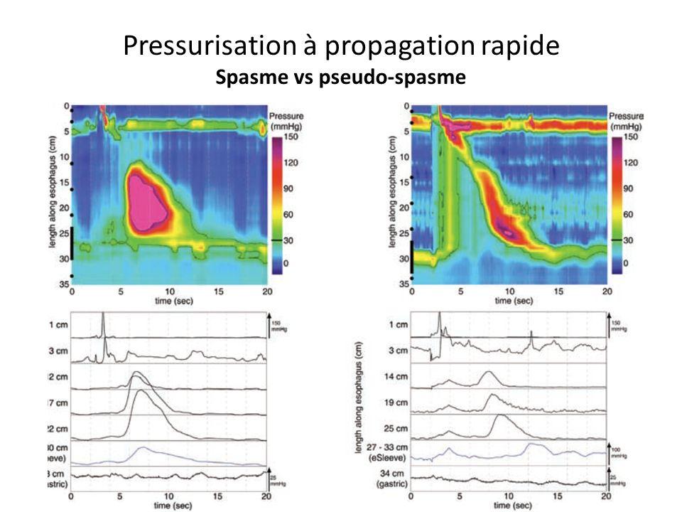 Pressurisation à propagation rapide Spasme vs pseudo-spasme