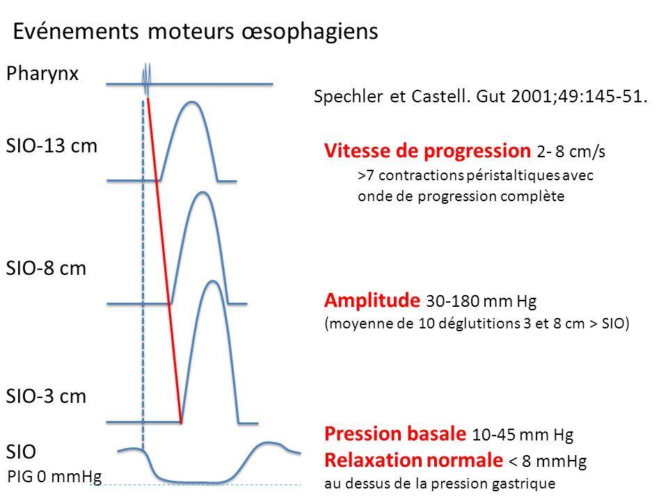 Evénements moteurs œsophagiens Pression basale 10-45 mm Hg Relaxation normale < 8 mmHg au dessus de la pression gastrique Amplitude 30-180 mm Hg (moye