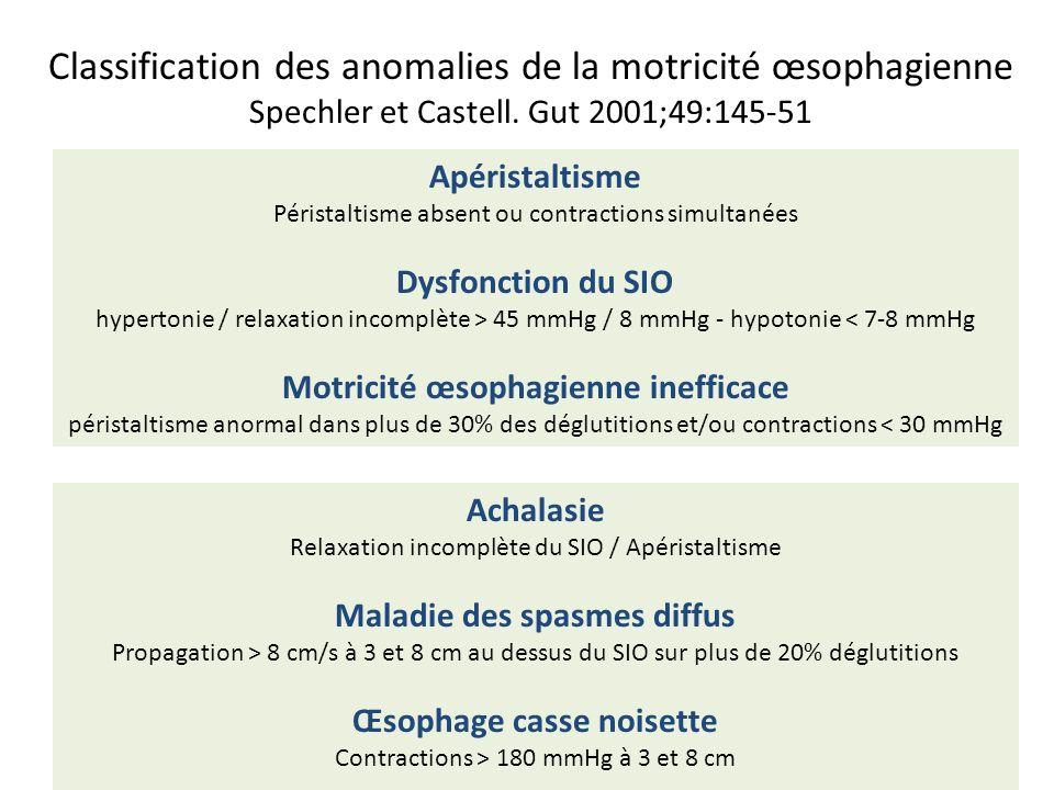 Classification des anomalies de la motricité œsophagienne Spechler et Castell. Gut 2001;49:145-51 Apéristaltisme Péristaltisme absent ou contractions