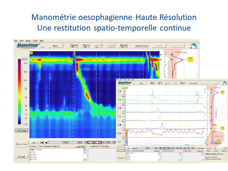 Manométrie oesophagienne Haute Résolution Une restitution spatio-temporelle continue