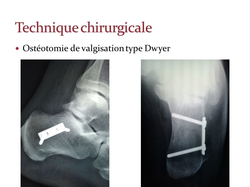 Ostéotomie de valgisation type Dwyer