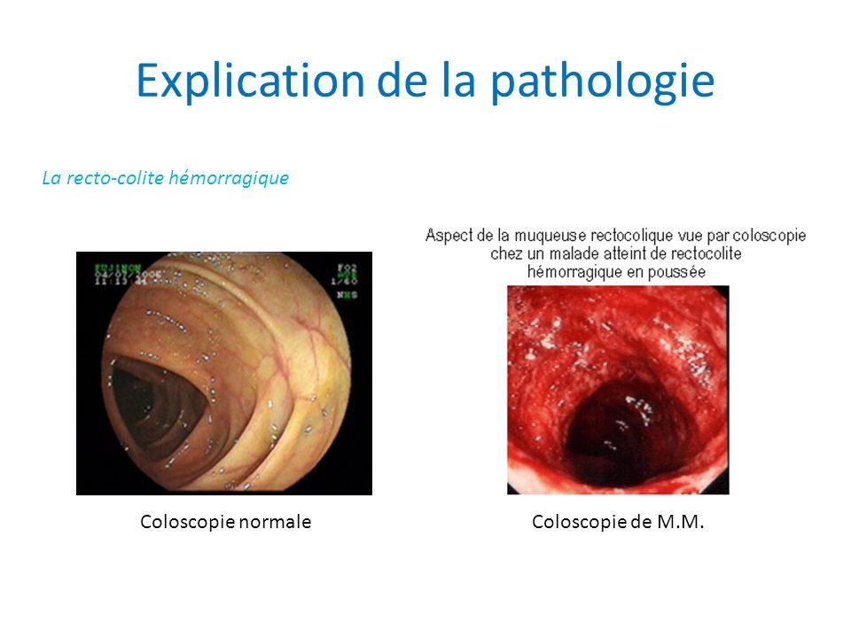 Explication de la pathologie La recto-colite hémorragique Coloscopie normaleColoscopie de M.M.