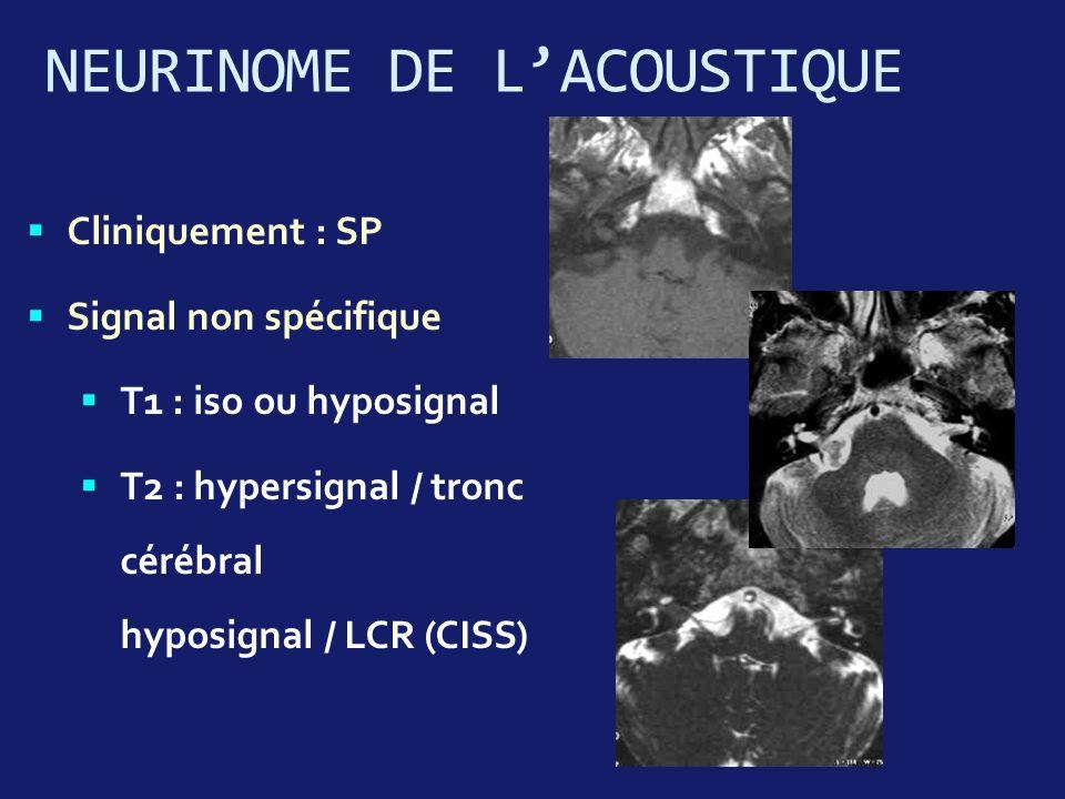 Cliniquement : SP Signal non spécifique T1 : iso ou hyposignal T2 : hypersignal / tronc cérébral hyposignal / LCR (CISS) NEURINOME DE LACOUSTIQUE
