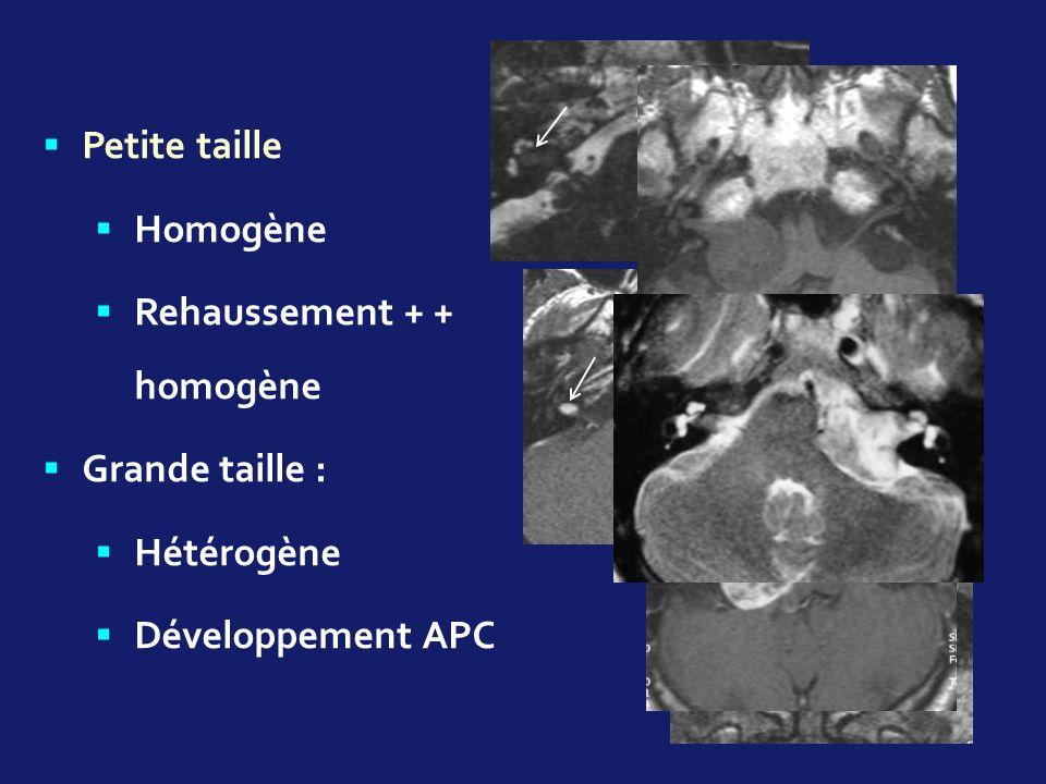 Petite taille Homogène Rehaussement + + homogène Grande taille : Hétérogène Développement APC