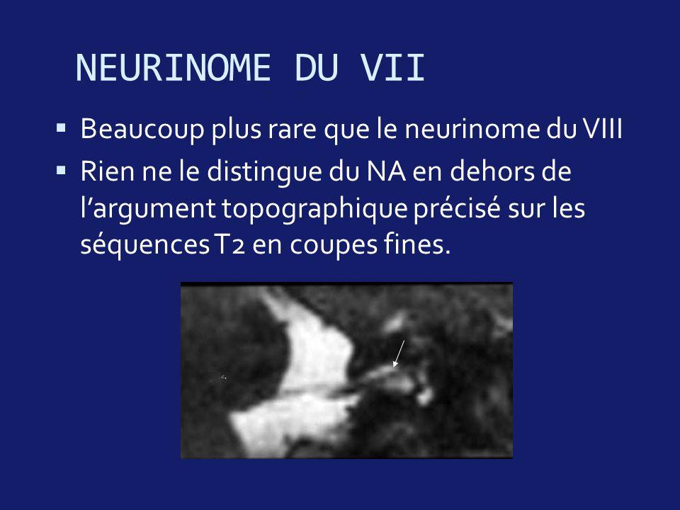 NEURINOME DU VII Beaucoup plus rare que le neurinome du VIII Rien ne le distingue du NA en dehors de largument topographique précisé sur les séquences