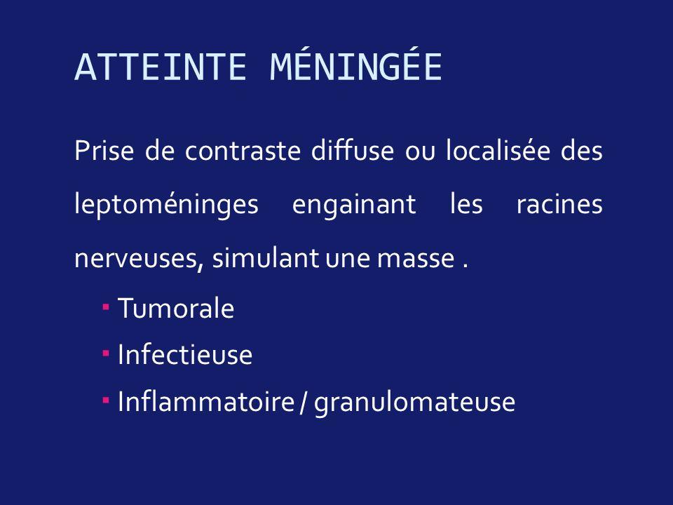 ATTEINTE MÉNINGÉE Prise de contraste diffuse ou localisée des leptoméninges engainant les racines nerveuses, simulant une masse. Tumorale Infectieuse
