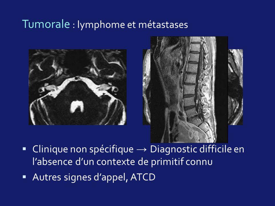 Tumorale : lymphome et métastases Clinique non spécifique Diagnostic difficile en labsence dun contexte de primitif connu Autres signes dappel, ATCD