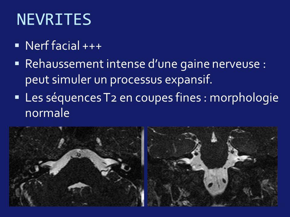 NEVRITES Nerf facial +++ Rehaussement intense dune gaine nerveuse : peut simuler un processus expansif. Les séquences T2 en coupes fines : morphologie