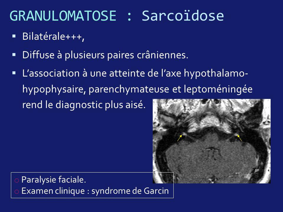GRANULOMATOSE : Sarcoïdose Bilatérale+++, Diffuse à plusieurs paires crâniennes. Lassociation à une atteinte de laxe hypothalamo- hypophysaire, parenc