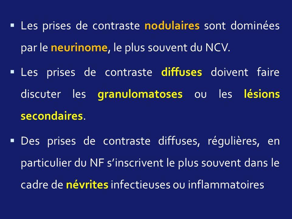 Les prises de contraste nodulaires sont dominées par le neurinome, le plus souvent du NCV. Les prises de contraste diffuses doivent faire discuter les