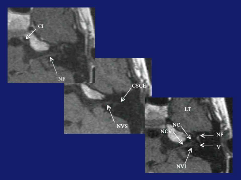 CONCLUSION Une approche diagnostique précise des prises de contraste du MAI impose : La connaissance des structures anatomiques Lutilisation des séquences IRM adéquates La prise en compte de lhistoire clinique.