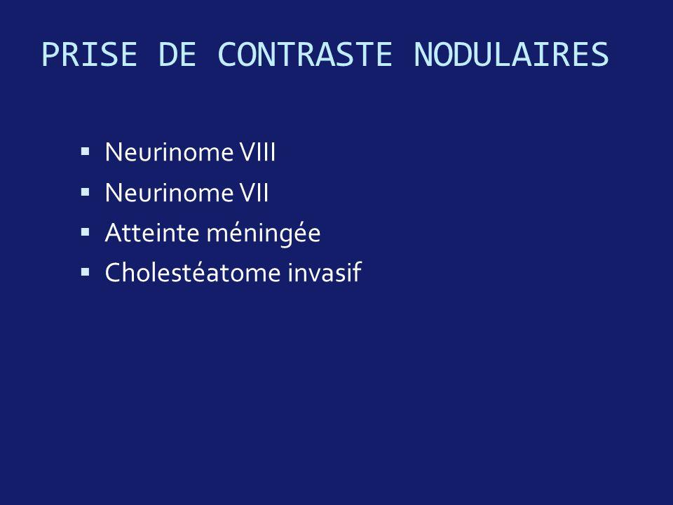 PRISE DE CONTRASTE NODULAIRES Neurinome VIII Neurinome VII Atteinte méningée Cholestéatome invasif