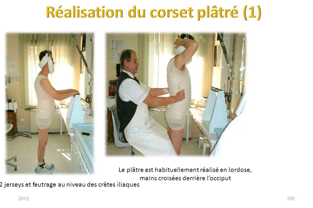 2012100 2 jerseys et feutrage au niveau des crêtes iliaques Le plâtre est habituellement réalisé en lordose, mains croisées derrière locciput