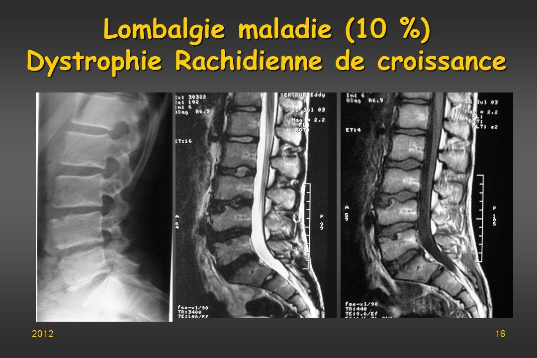 Lombalgie maladie (10 %) Dystrophie Rachidienne de croissance 201216