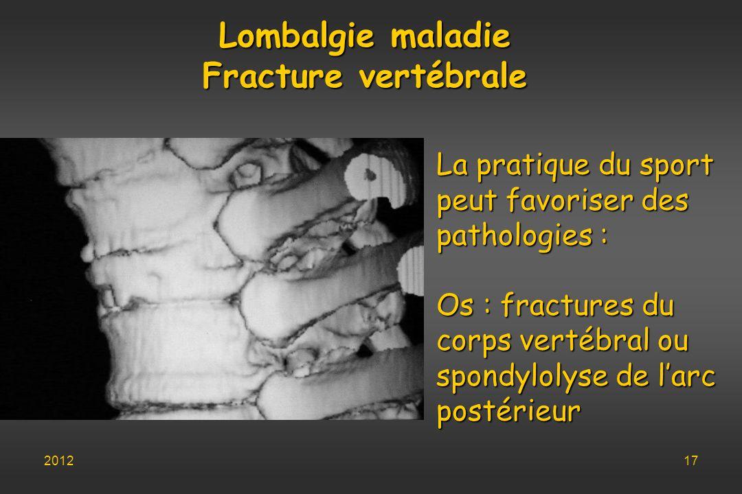 Lombalgie maladie Fracture vertébrale La pratique du sport peut favoriser des pathologies : Os : fractures du corps vertébral ou spondylolyse de larc