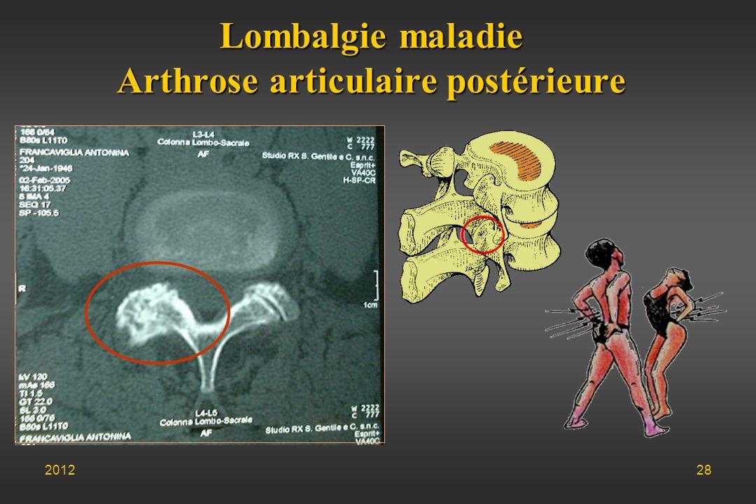 Lombalgie maladie Arthrose articulaire postérieure 201228