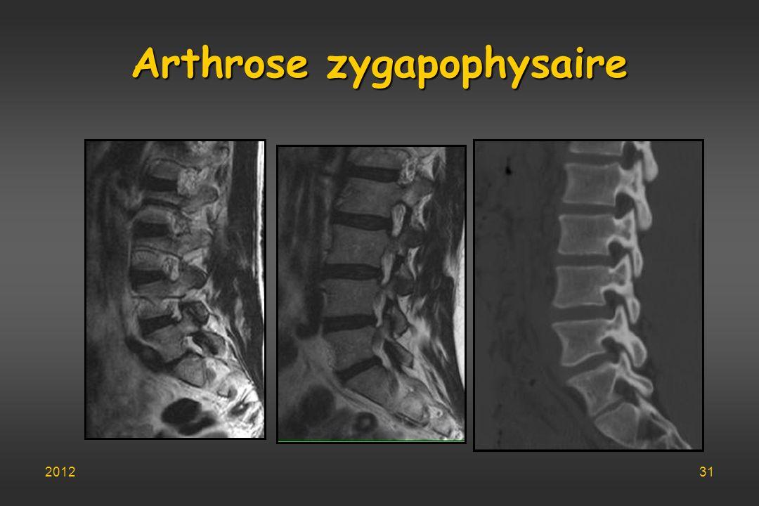 Arthrose zygapophysaire 201231