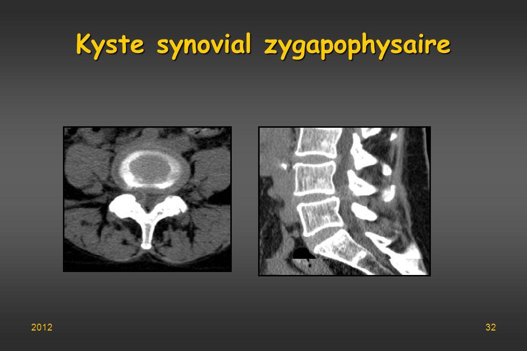 Kyste synovial zygapophysaire 201232