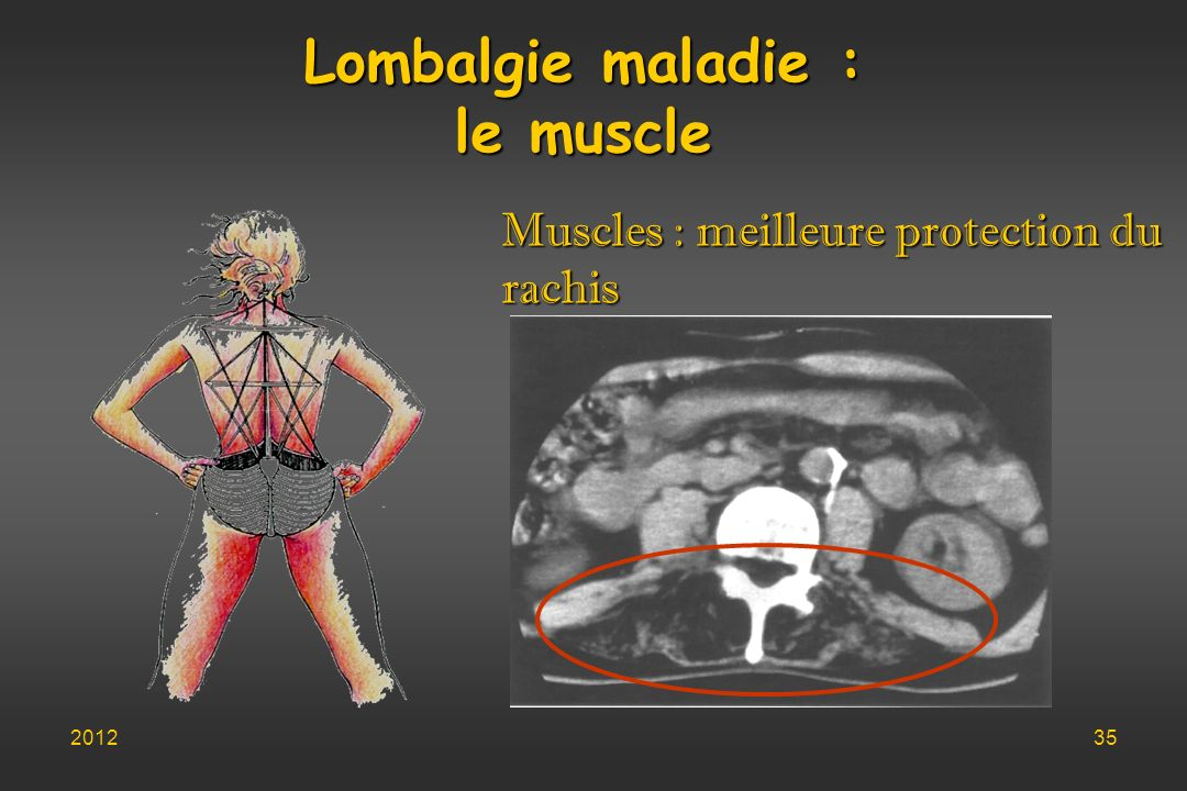 Lombalgie maladie : le muscle Muscles : meilleure protection du rachis 201235