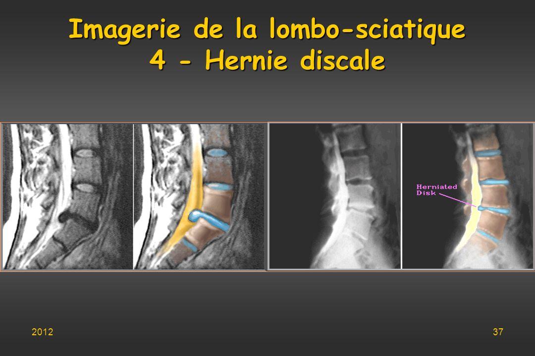 Imagerie de la lombo-sciatique 4 - Hernie discale 201237