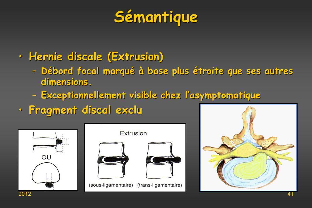 Sémantique Hernie discale (Extrusion)Hernie discale (Extrusion) –Débord focal marqué à base plus étroite que ses autres dimensions. –Exceptionnellemen