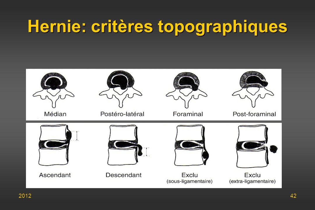 Hernie: critères topographiques 201242