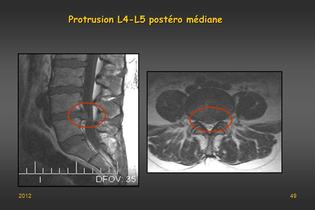 Protrusion L4-L5 postéro médiane 201249