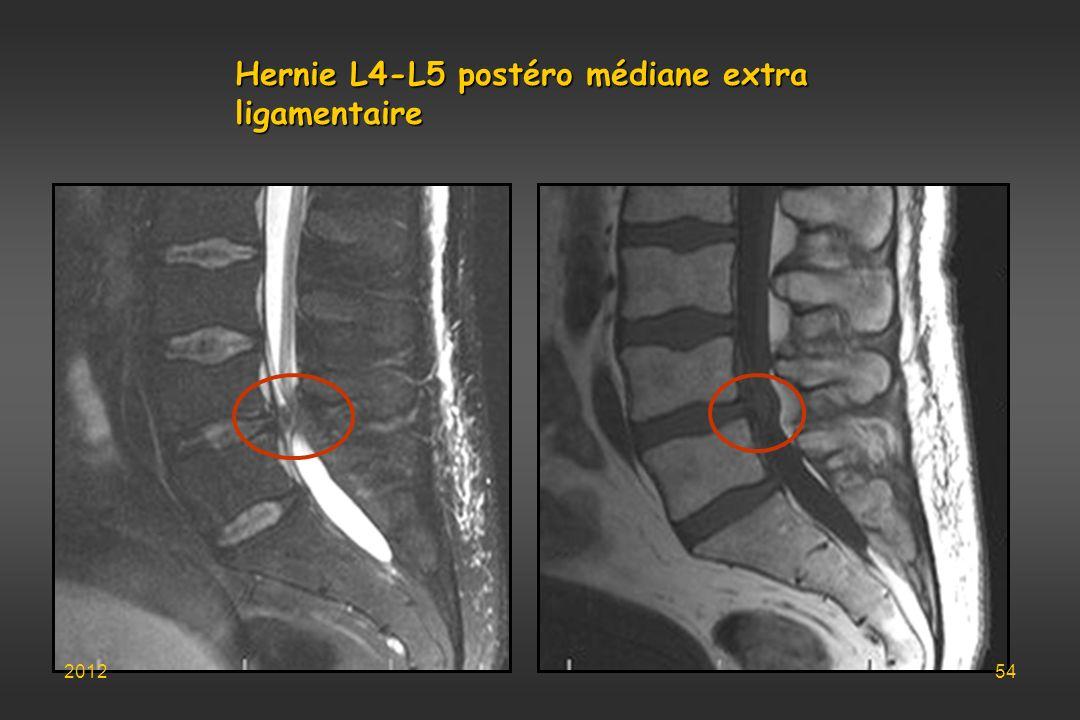 Hernie L4-L5 postéro médiane extra ligamentaire 201254