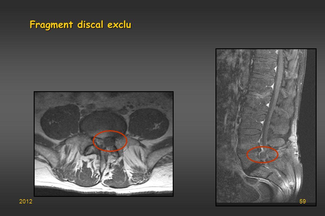 Fragment discal exclu 201259