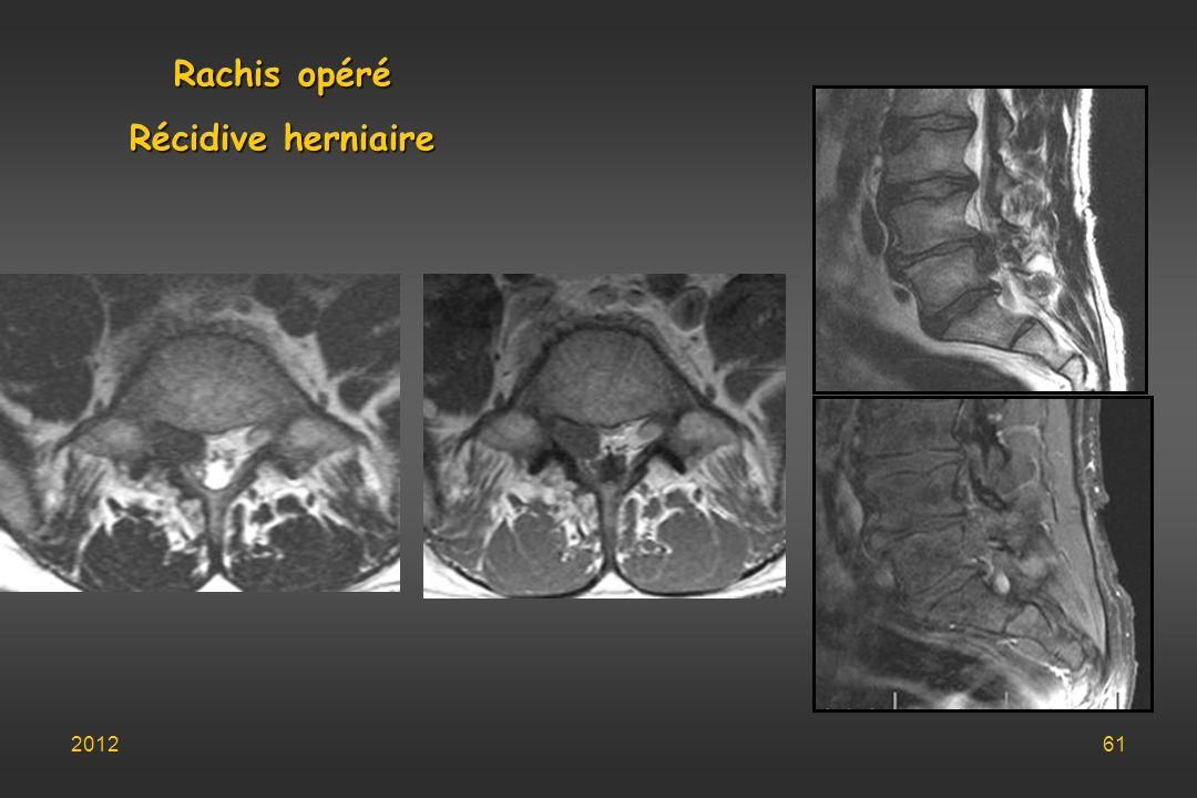 Rachis opéré Récidive herniaire 201261