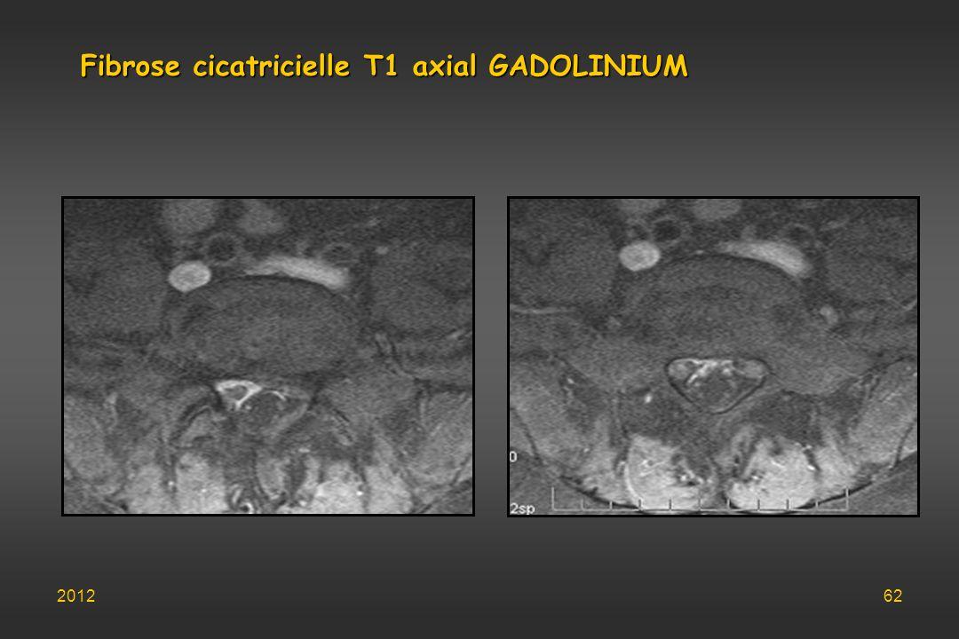 Fibrose cicatricielle T1 axial GADOLINIUM 201262