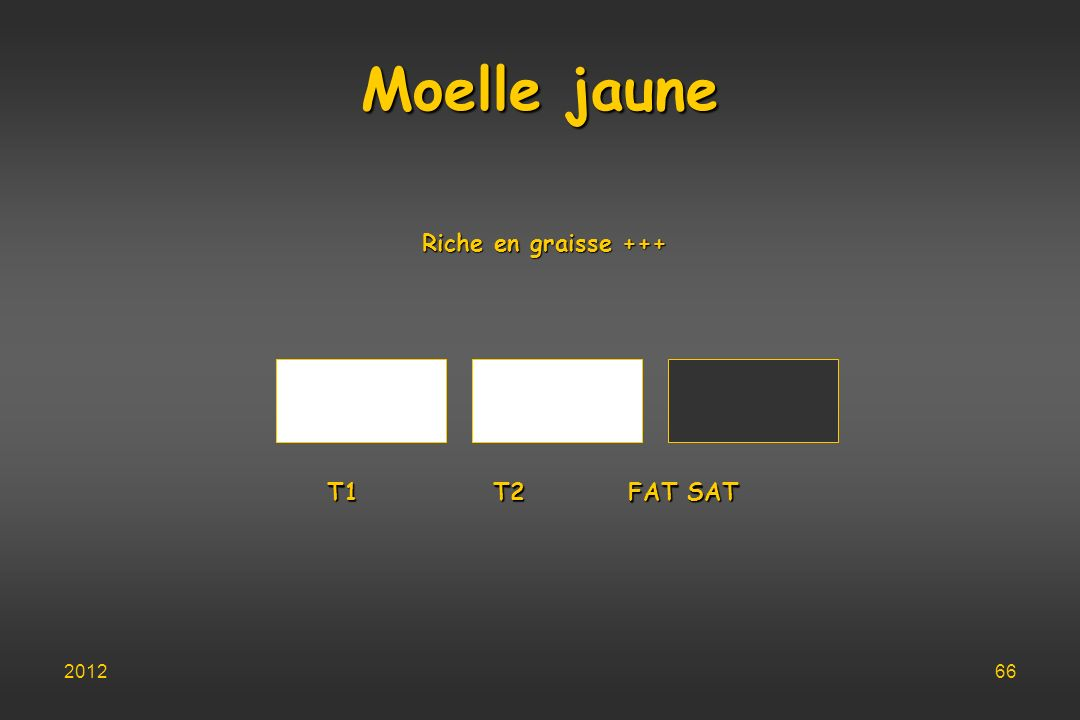 Moelle jaune Riche en graisse +++ T1 T2 FAT SAT T1 T2 FAT SAT 201266