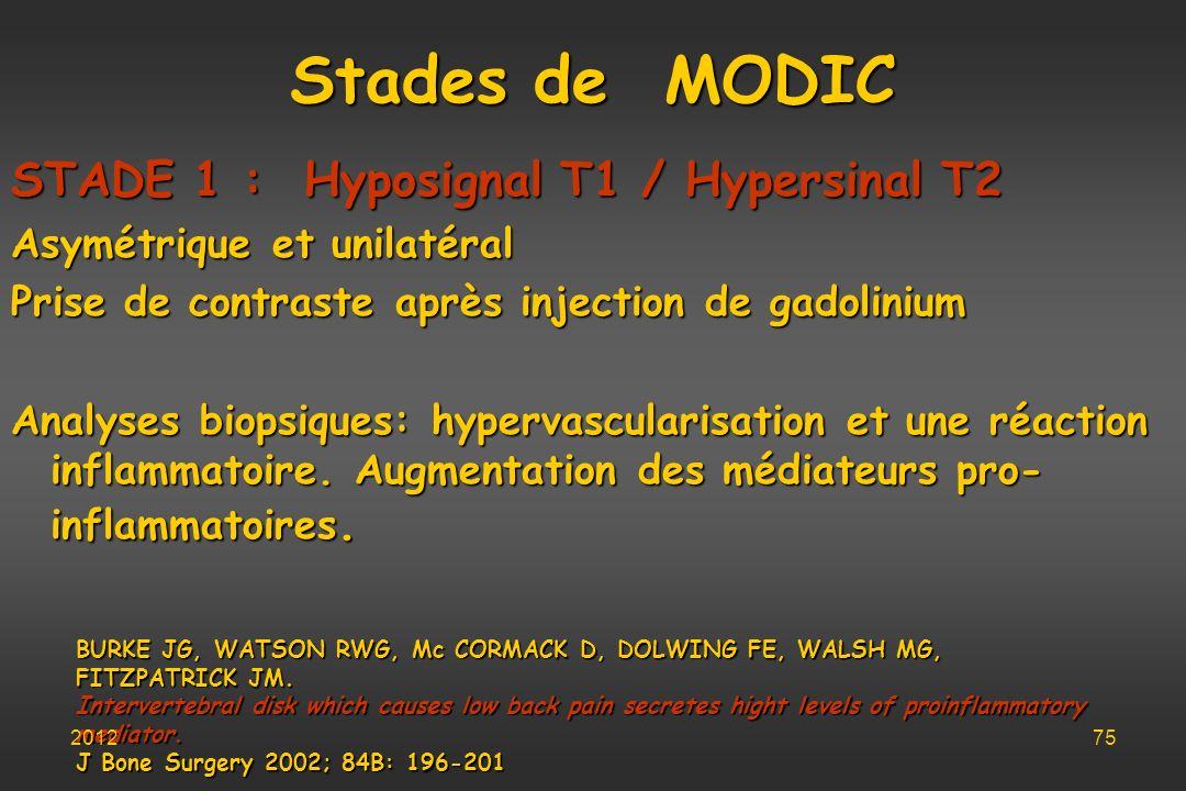 Stades de MODIC STADE 1 : Hyposignal T1 / Hypersinal T2 Asymétrique et unilatéral Prise de contraste après injection de gadolinium Analyses biopsiques