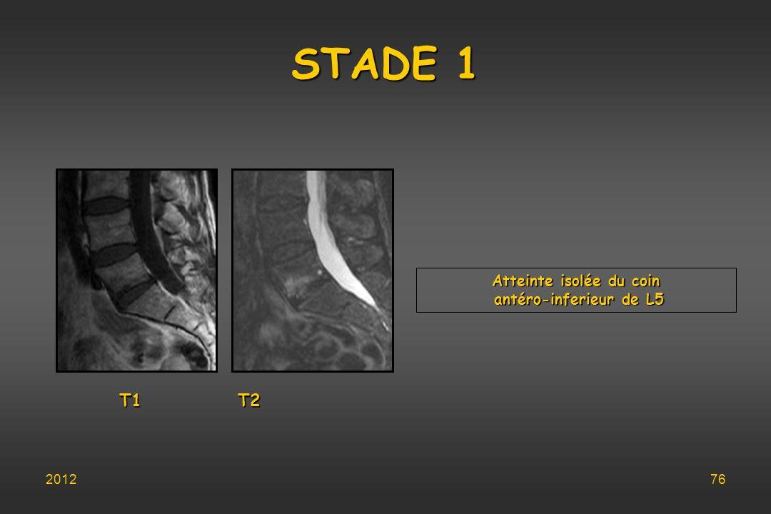 STADE 1 Atteinte isolée du coin antéro-inferieur de L5 antéro-inferieur de L5 T1 T2 201276