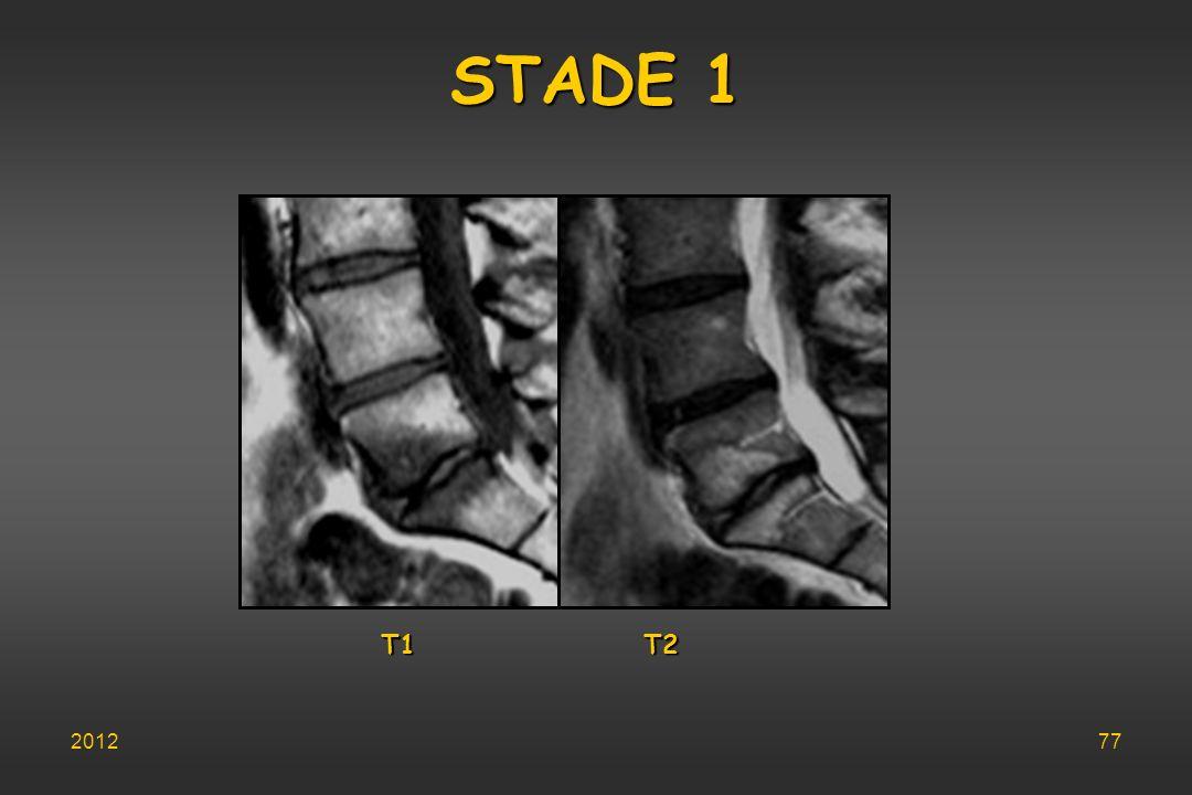 STADE 1 T1 T2 201277