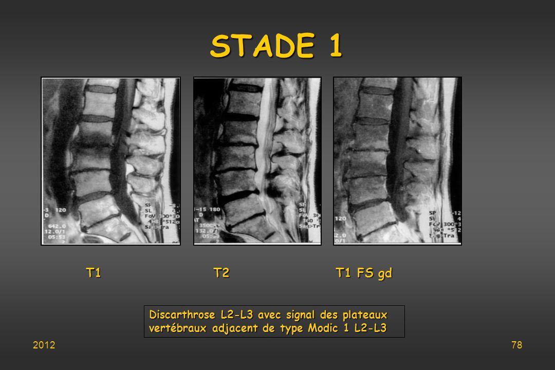 STADE 1 T1 T2 T1 FS gd Discarthrose L2-L3 avec signal des plateaux vertébraux adjacent de type Modic 1 L2-L3 201278