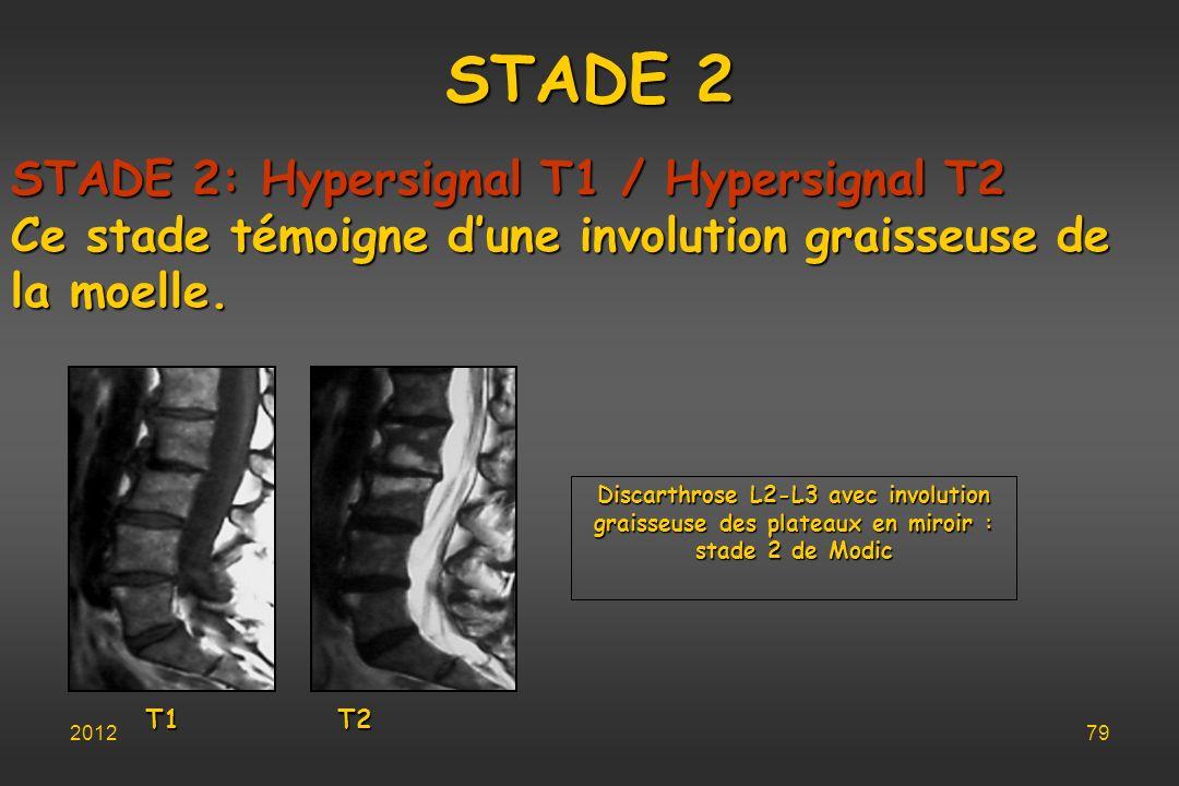STADE 2 T1 T2 Discarthrose L2-L3 avec involution graisseuse des plateaux en miroir : stade 2 de Modic STADE 2: Hypersignal T1 / Hypersignal T2 Ce stad