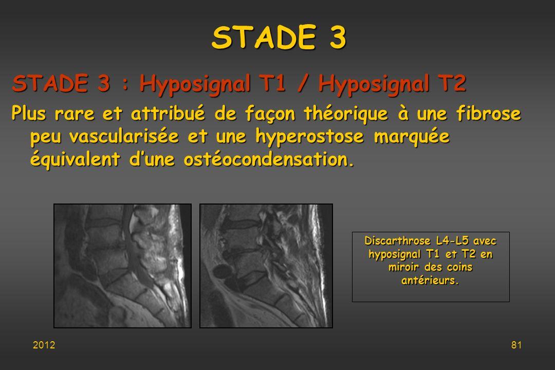 STADE 3 STADE 3 : Hyposignal T1 / Hyposignal T2 Plus rare et attribué de façon théorique à une fibrose peu vascularisée et une hyperostose marquée équ